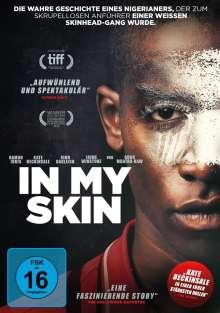 In my skin, DVD