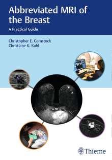 Christopher Comstock: Abbreviated MRI of the Breast, Buch