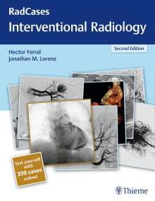 Hector Ferral: Radcases Interventional Radiology, Buch