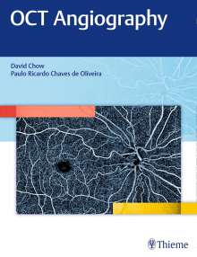David R. Chow: OCT Angiography, Buch