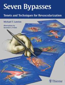 Michael T. Lawton: Seven Bypasses, Buch