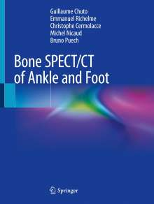 Guillaume Chuto: Bone SPECT/CT of Ankle and Foot, Buch