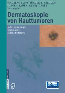 Dermatoskopie von Hauttumoren, Buch