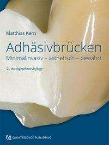 Matthias Kern: Adhäsivbrücken, Buch